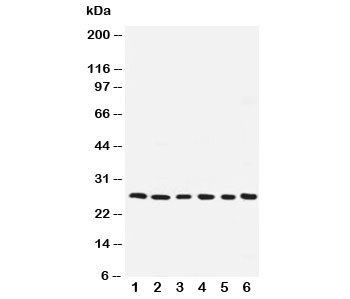 Western blot testing of ARC antibody and human samples 1:  SMMC-7721;  2: A549;  3: U87;  4: HeLa;  5: MCF-7;  6: rat liver