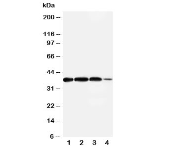 Western blot testing of Arg2 antibody and Lane 1:  rat lung;  2: (r) testis;  3: human A549;  4: (h) 293T cell lysate.  Expected size ~38KD