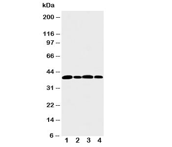 Western blot testing of Aurora B antibody and Lane 1:  rat liver; and human samples 2: 22RV;  3: HeLa;  4: SW620 cell lysate.  Predicted molecular weight: 39-45 kDa