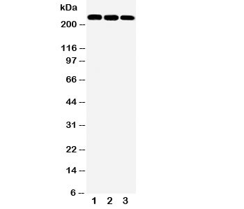 Western blot testing of ABCA1 antibody and Lane 1:  rat brain;  2: human HT1080;  3: (h) HeLa cell lysate.  Expected/observed molecular weigth: 220~254kDa.