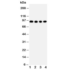 Western blot testing of ADAM17 antibody and Lane 1:  human placenta;  2: HeLa;  3: PANC;  4: 293T cell lysate.  Expected molecular weight: 80-130KD depending on level of glycosylation