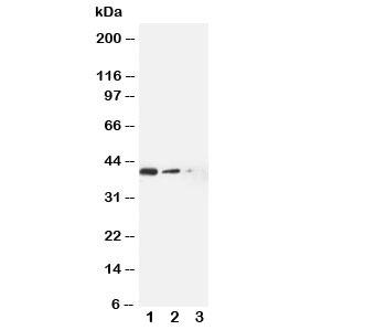 Western blot testing of ABCC4 antibody and Lane 1:  recombinant human protein 10ng;  2: 5ng;  3: 2.5ng