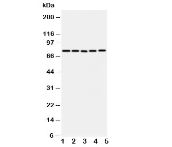Western blot testing of ABCG1 antibody and Lane 1:  U87;  2: SMMC-7721;  3: HeLa;  4: COLO320;  5: MCF-7 cell lysate.  Predicted molecular weight: 75~90KD