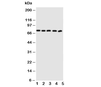 Western blot testing of ABCG5 antibody and human lysate samples 1:  MCF-7;  2: A549;  3: HT1080;  4: U-87 MG;  5: SKOV.  Predicted molecular weight ~73 kDa.