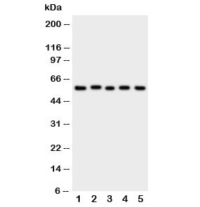 Western blot testing of ASIC3 antibody and Lane 1:  rat brain;  2: (r) testis;  3: human U87;  4: mouse Neuro-2a;  5: (h) SMMC-7721 cell lysate.  Expected/observed molecular weight: ~59 kDa.