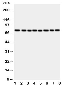 Western blot testing of CYPOR antibody and rat samples: 1. ovary;  2. lung;  3. testis;  4. spleen; and human samples  5. A549;  6.  HeLa;  7. SKOV;  8. MCF-7 cell lysate.  Predicted/observed molecular weight: ~77kDa.
