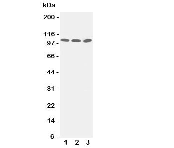 Western blot testing of ZO-3 antibody and Lane 1:  PANC;  2: A549;  3: HeLa cell lysate.  Predicted/observed size ~103KD