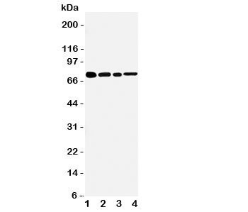 Western blot testing of TNFR2 antibody and Lane 1:  rat spleen;  2: (r) brain;  3: mouse brain;  4: (m) HEPA cell lysate.  Predicted molecular weight: 50/70~80kDa (unmodified/glycosylated).