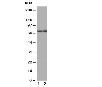 Western blot testing of ABCG4 antibody; Lane 1: rat brain;  2: mouse brain tissue lysate. Predicted molecular weight 60-80 kDa