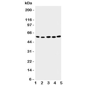 Western blot testing of ABI2 antibody; Lane 1: rat brain;  2: human placenta;  3: MCF-7;  4: HeLa;  5: Jurkat cell lysate. Predicted molecular weight ~55 kDa.