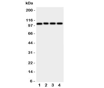 Western blot testing of ADAM19 antibody; Lane 1: rat spleen;  2: (r) intestine;  3: (r) brain;  4: human HeLa cell lysate.  Predicted molecular weight: ~105/125kDa (unmodified/glycosylated).