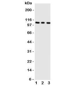 Western blot testing of ADAMTS1 antibody;  Lane 1: rat liver;  2: (r) heart;  3: (r) brain tissue lysate.  Predicted molecular weight 84~120 kDa depending on glycosylation and processing.