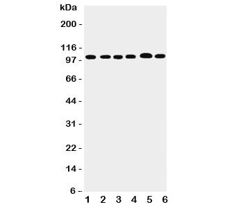 Western blot testing of ADAMTS5 antibody; Lane 1: rat liver and human samples 2: HeLa;  3: COLO320;  4: MCF-7;  5: A549;  6: SGC cell lysate. Predicted molecular weight ~102 kDa (unmodified, larger if glycosylated), ~73 kDa (cleaved).