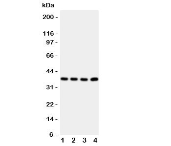 Western blot testing of Aquaporin 7 antibody and Lane 1:  SGC;  2: SMMC-7721;  3: A549;  4: COLO320 cell lysate