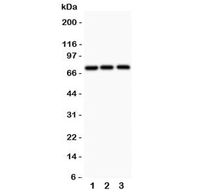 Western blot testing of APLP1 antibody and 1) human HeLa, 2) rat PC-12, and 3) mouse HEPA1-6 lysate;  Expected molecular weight: 76 kDa (unmodified), ~86 kDa (soluble/glycosylated form), 92~95 kDa (mature form).