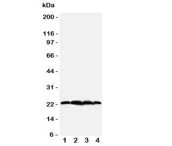 Western blot testing of BAG2 antibody;  Lane 1: rat testis;  2: HeLa;  3: A549;  4: A431 cell lysate.  Predicted/observed molecular weight: ~22kDa.