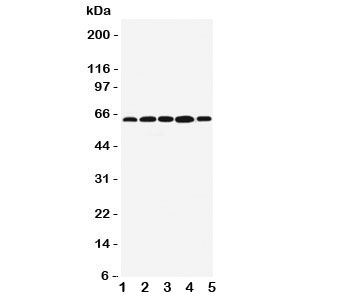 Western blot testing of BAG3 antibody;  Lane 1: MCF-7;  2: Jurkat;  3: A549;  4: HeLa;  5: COLO320 cell lysate.   Predicted molecular weight ~62kDa but can be observed at 75~80kDa.