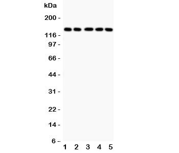 Western blot testing of Collagen 2 antibody and human samples 1:  COLO320;  2: HeLa;  3: MCF-7;  4: A549;  5: Jurkat lysate.  Predicted molecular weight ~140 kDa.