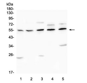 Western blot testing of AChR antibody and lysates from: 1) rat brain, 2) rat C6, 3) mouse RAW246.7, 4) human U-2 OS and 5) human SHG-44 cells. Predicted molecular weight ~51 kDa.