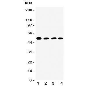Western blot testing of Antithrombin III antibody and Lane 1:  rat testis;  2: SMMC-7721;  3: Jurkat;  4: Raji cell lysate.  Expected/observed size ~52KD