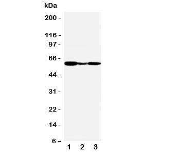 Western blot testing of GPR30 antibody and Lane 1:  human COLO320;  2: human MCF-7;  3: monkey COS7 cell lysate.  Expected molecular weight: 40-60 kDa depending on glycosylation level.