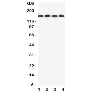 Western blot testing of ATP7B antibody and Lane 1:  (r) liver;  2: (r) brain;  3: (h) SMMC-7721;  4: (m) Neuro-2a lysate.  Expected/observed size ~157 kDa.