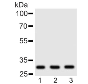 Western blot testing of human 1) placenta, 2) HeLa and 3) Jurkat lysate with Adiponectin antibody at 0.5ug/ml. Predicted molecular weight ~30 kDa.