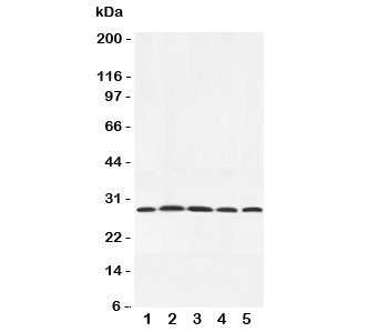 Western blot testing of Adiponectin antibody and rat samples 1:  testis;  2: spleen;  3: skeletal muscle;  4: heart;  5: liver lysate. Routinely observed at 26~30kDa.