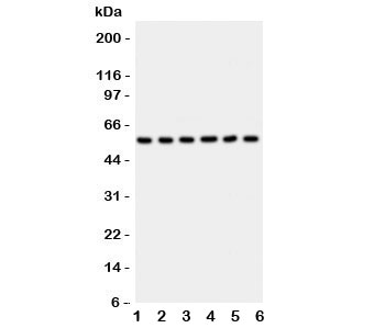 Western blot testing of AKT2 antibody and Lane 1:  HeLa;  2: PANC;  3: A549;  4: COLO320;  5: HT1080;  6: MCF-7 lysate. Predicted molecular weight: ~56kDa.