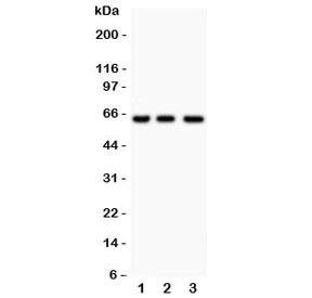 Western blot testing of RELA antibody and human samples 1: Jurkat;  2: COLO320;  3: HeLa lysate. Expected molecular weight ~65 kDa.