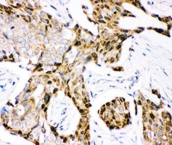 IHC-P: Ubiquitin antibody testing of human mammary cancer tissue