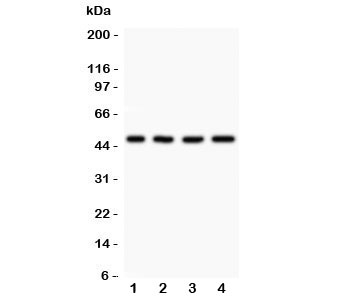 Western blot testing of AAMP antibody and Lane 1:  A431;  2: HeLa;  3: HEPG2;  4: MCF-7.  Expected/observed size ~47KD