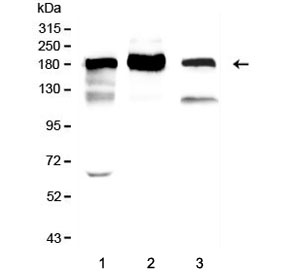 Western blot testing of 1) rat lung, 2) mouse lung and 3) Raji lysate with ACE antibody. Expected molecular weight 140-170+ kDa depending on glycosylation level.