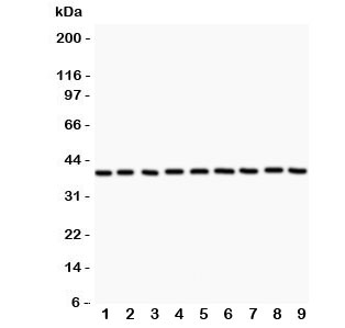 Western blot testing of APE1 antibody and Lane 1:  rat NRK;  2: human HeLa;  3: (r) PC12;  4: (r) RH35;  5: mouse HEPA;  6: (h) MCF7: (h) A549;  8: (h) placenta;  9: (h) A431.  Expected/observed molecular weight: ~38 kDa.