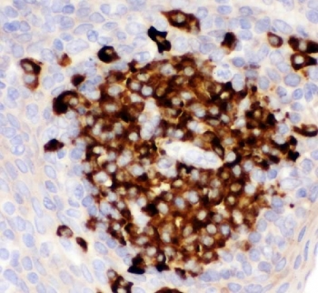 Western blot testing of CD82 antibody and Lane 1:  HL-60;  2: CEM;  3: HUT;  4: U937;  5: MCF-7