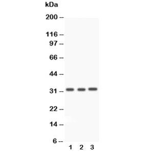 Western blot testing of Caspase-3 antibody and Lane 1:  rat liver;  2: rat thymus;  3: SMMC-7721 lysate. Predicted molecular weight ~32 kDa.