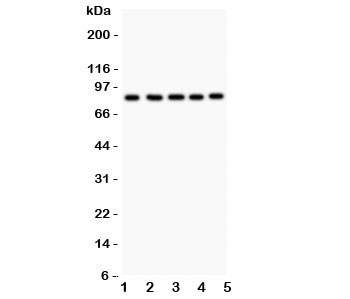Western blot testing of FOXM1 antibody and Lane 1:  HeLa;  2: COLO320;  3: SW620;  4: SKOV;  5: MCD-7.  Predicted/observed size ~84KD
