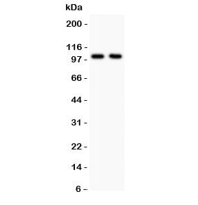 Western blot testing of GLUR1 antibody and Lane 1:  rat brain;  2: mouse brain lysate.  Predicted/observed molecular weight ~102 kDa