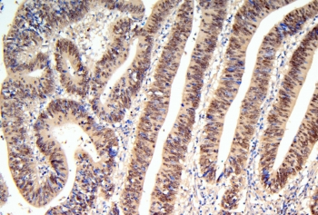 IHC staining of FFPE human intestinal cancer with HNF4A antibody. HIER: boil tissue sections in pH8 EDTA for 20 min and allow to cool before testing.