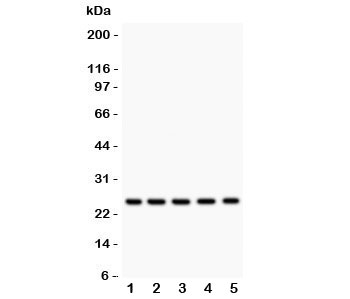 Western blot testing of HSP27 antibody and Lane 1:  rat NRK;  2: human HeLa;  3: (h) A549;  4: (h) COLO320;  5: (h) HEPG2 lysate.  Expected molecular weight: 23-27 kDa.