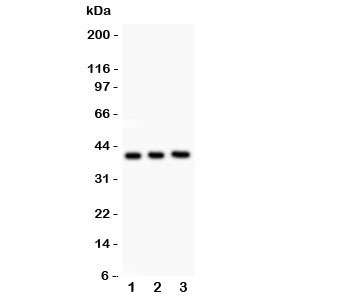 Western blot testing of Fetuin A antibody and Lane 1:  NIH3T3;  2: Neuro-2a;  3: mouse brain lysate.  Predicted molecular weight: ~39/45-59kDa (unmodified/glycosylated).