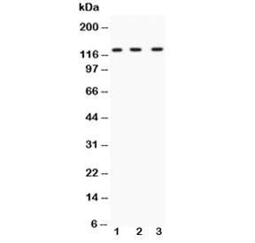 Western blot testing of HIF-1 alpha antibody and Lane 1:  human HeLa;  2: human SHG-44;  3: mouse HEPA1-6;  Routinely observed molecular weight: 100~120 kDa.