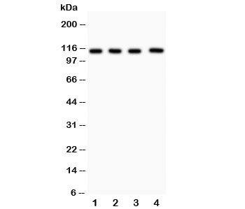 Western blot testing of Neuropilin 1 antibody and Lane 1:  (h) U87;  2: (h) A549;  3: human placenta;  4: rat heart lysate.  Predicted size: 102~130KD
