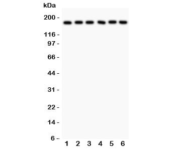 Western blot testing of PAPP-A antibody and human samples 1:  placenta;  2: HT1080;  3: SKOV;  4: 22RV1;  5: SW620;  6: MM231 lysate.  Predicted/observed size ~180KD