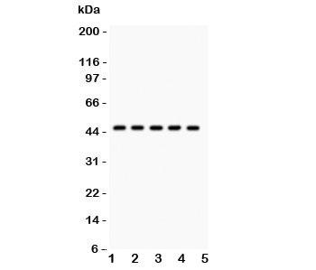 Western blot testing of PIM-1 antibody and human samples 1:  U20S;  2: A549;  3: COLO320;  4: SW620;  5: Jurkat.  Western blot testing of human Jurkat cell lysate with PIM1 antibody. Predicted molecular weight ~44 kDa (PIM-1L) and ~34 kDa (PIM-1S).