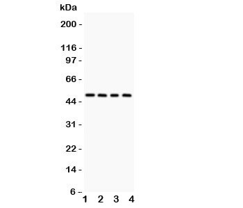 Western blot testing of Alpha 1 Antitrypsin antibody and Lane 1:  rat testis;  2: mouse testis;  3: (r) liver;  4: (m) liver lysate.  Expected molecular weight: ~47 kDa (unmodified), 52 kDa (glycosylated).