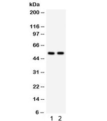 Western blot testing of 1) human HeLa and 2) mouse HEPA lysate with ATG13 antibody. Predicted/observed molecular weight ~57 kDa.