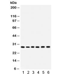 Western blot testing of human 1) HeLa, 2) COLO320, 3) SW620, 4) Jurkat, 5) Raji and 6) U937 lysate with APRIL antibody. Expected/observed molecular weight ~28 kDa.