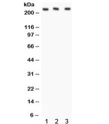 Western blot testing of 1) rat liver, 2) mouse liver and 3) human SMMC lysate with ABCA1 antibody. Expected/observed molecular weigth: 220~254 kDa.