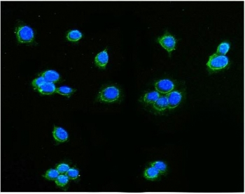 Immunofluorescent staining of FFPE human MCF7 cells with AIF antibody (green) and DAPI nuclear stain (blue). HIER: steam section in pH6 citrate buffer for 20 min.